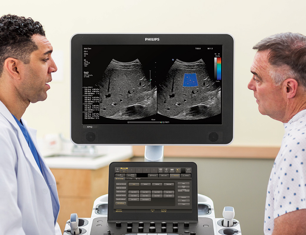 Ultrasound examination using Philips EPIQ ElastQ